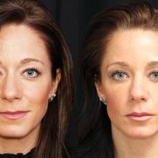 علاج موازنة الوجه التجميليّ خيارك المفضّل لتجديد شباب الوجه